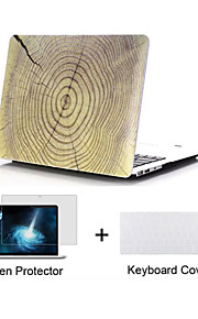 "Wood Grain Design Matte Hard Full Body Case with Keyboard Cover and Screen Protector for Macbook  Pro 13""/15"""